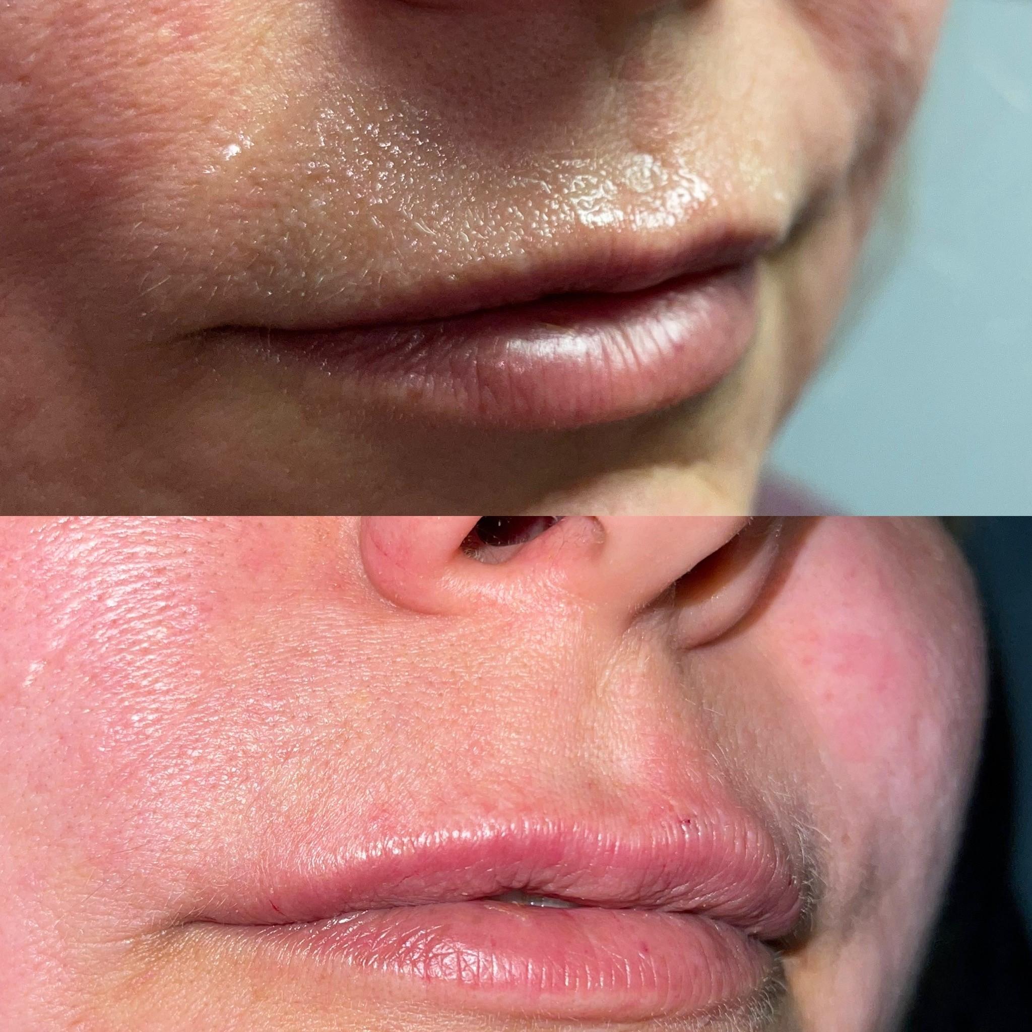medbeaty rn lip threads